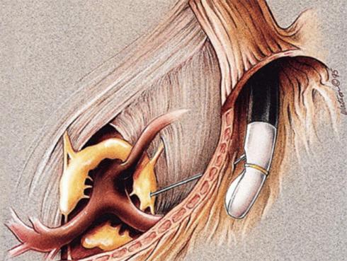 癌性疼痛に対する超音波内視鏡下腹腔神経叢ブロック術