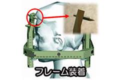 従来行われている通常放射線治療